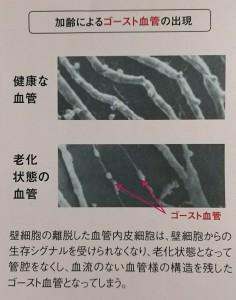 ゴースト血管写真