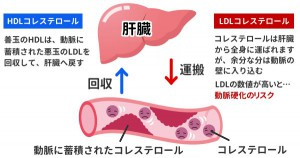 HDL20Cholesterol